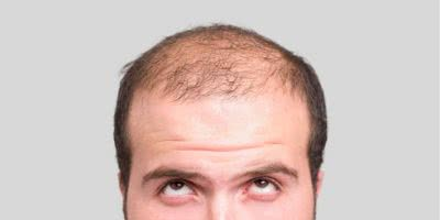 hair loss feature